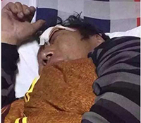 Tibetan father and son severely beaten by Chinese police in restive Driru County